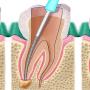Tratamentul de canal radicular: procedura